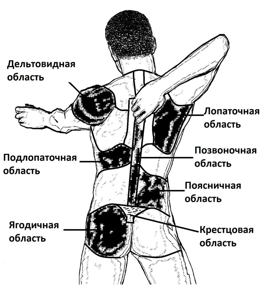 Боль при пиелонефрите в животе и головные боли