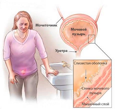Какие виды инфекции бывают