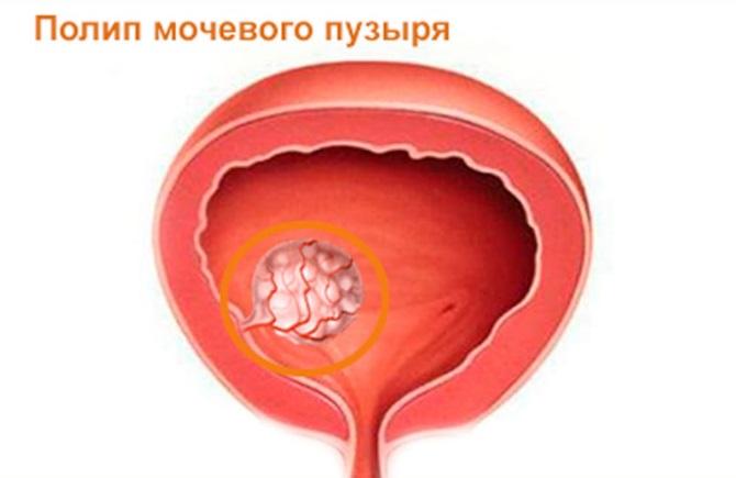 Полип мочевого пузыря