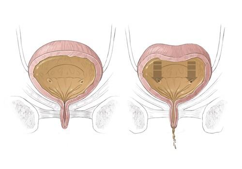 Что такое нейрогенный мочевой пузырь