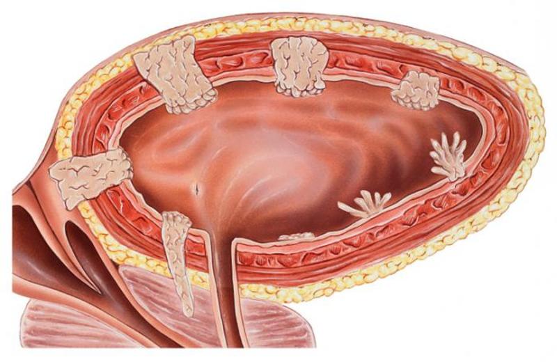 Полипы в мочевом пузыре у мужчин и женщин: симптомы, причины и операции по удалению, лечение полипа мочевого пузыря в Москве