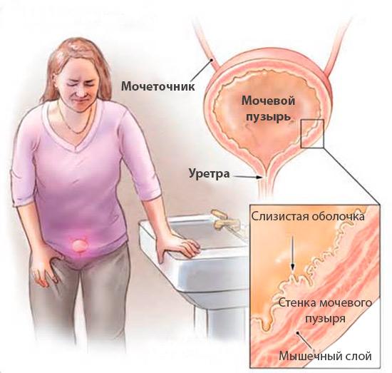 Какие антибиотики принимать при цистите у женщин
