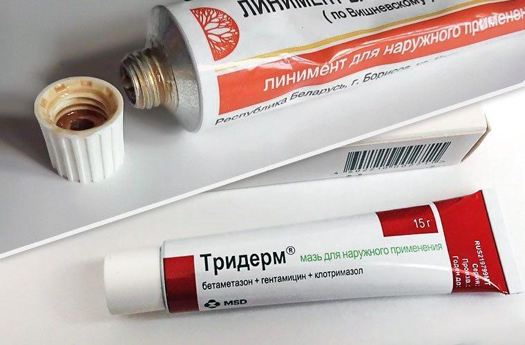 Мази для лечения цистита