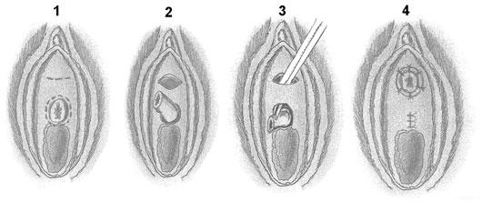 Антибактериальная смазка против цистита