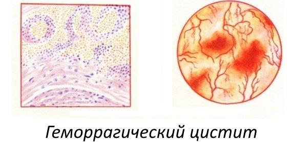 Цистит и беременность. Причины, симптомы и лечение цистита у беременных