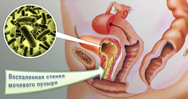 Инфекционная форма