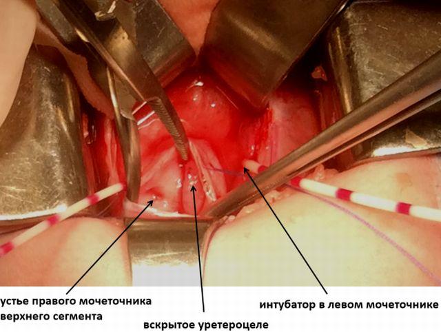Лечение уретероцеле