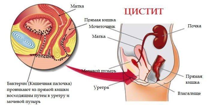 Особенности заболевания Пиелонефрит