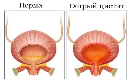 Острый цистит симптомы у женщин лечение