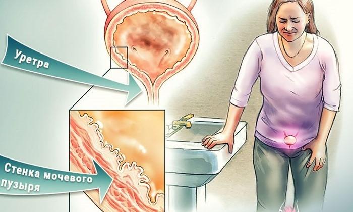 Симптомы Геморрагический цистит