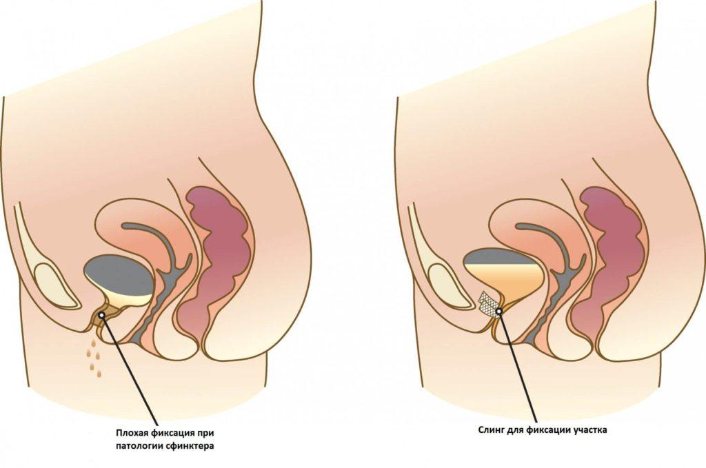 Недержание мочи при гормональном сбое