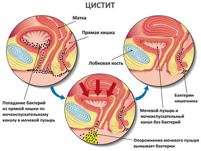 Какие симптомы цистита