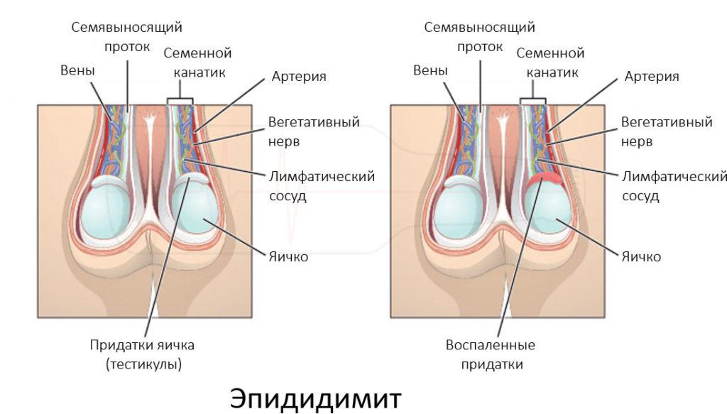 Лечение неинфекционного эпидидимита