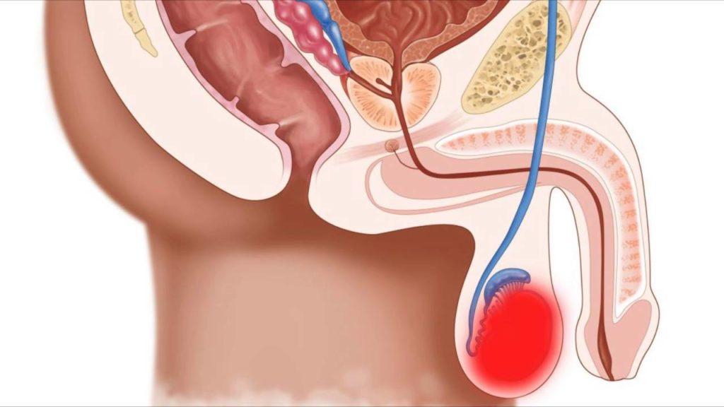 Лечение острого эпидидимита