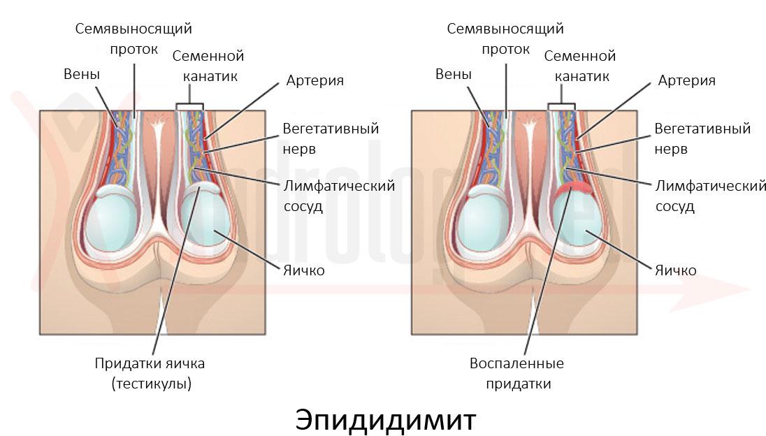 Разновидности эпидидимита
